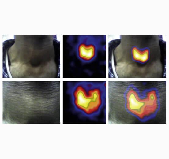 Thyroid imaging using Hybrid Gamma Camera